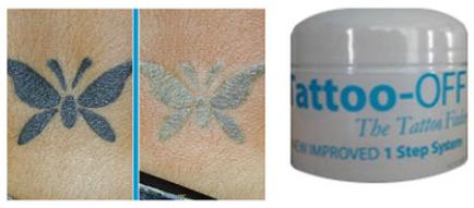 Tattoo Off Tattoo removal cream